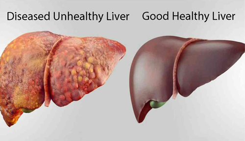 The difference between a good and bad liver
